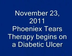 Therapy Begins On A Diabetic Ulcer