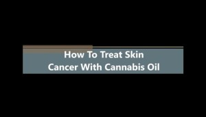 How To Treat Skin Cancer